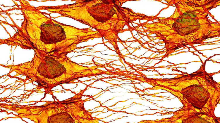 Des cellules cancéreuses. (SCIENCE PHOTO LIBRARY / AFP)