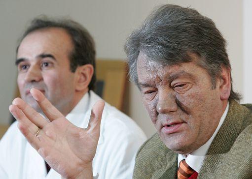Viktor Ioutchenko, défiguré, le 12 décembre 2004 lors d'une conférence de presse avec son médecin à Vienne (Autriche) (REUTERS - Heinz-Peter Bader HPB/AA)