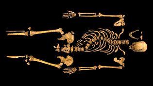 Sur cette photo du squelette de Richard III, apparaissent nettement la scoliose et le crâne fendu au combat. (UNIVERSITY OF LEICESTER / AFP)