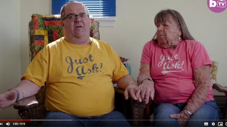 Mariés depuis 10 ans, ils sont tous les deux atteints de neurofibromatose (© Barcroft TV sur YouTube )