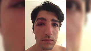 Arnaud Gagnoud a posté la photo de son visage suite à son agression sur son compte Instagram. (CAPTURE D'ÉCRAN INSTAGRAM)