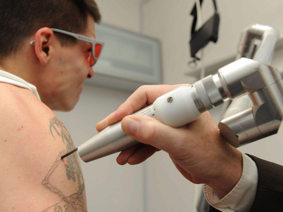 Effacer son tatouage au laser : une technique encore chère et imparfaite
