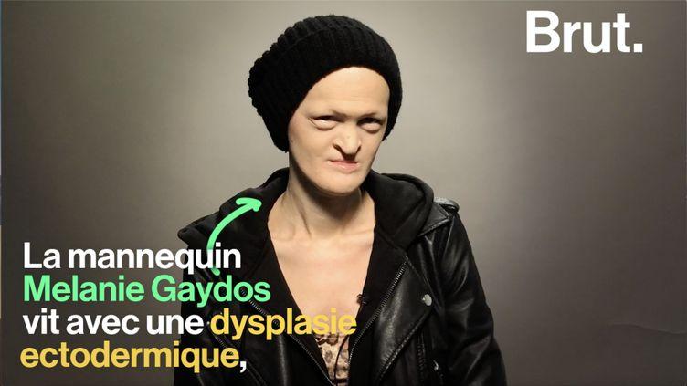 La pathologie de Melanie Gaydos a privé la jeune fille de cheveux et de dents. Pourtant, l'Américaine est devenue une mannequin célèbre. (BRUT)