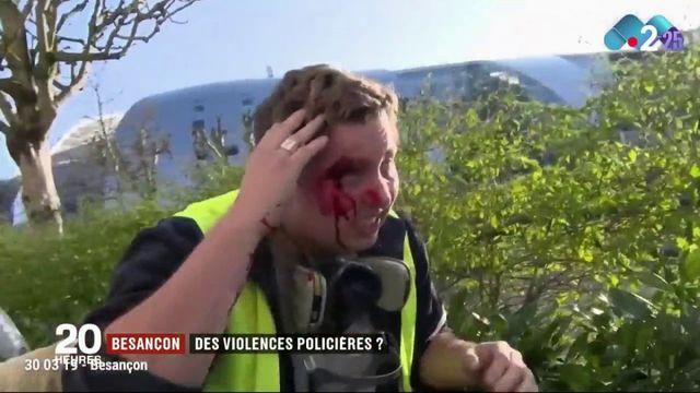 Besançon : des violences policières ?