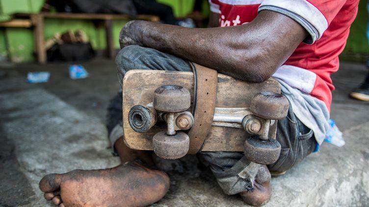 Atteint enfantpar la poliomyélite, cetadolescent ghanéen a perdu l'usage d'une jambe. Avec d'autres jeunes, il joue de temps en temps au football en fixant une planche à roulettes du côté invalidede son corps (photo du 15 mai 2017). (JORDI PERDIGO / ANADOLU AGENCY)
