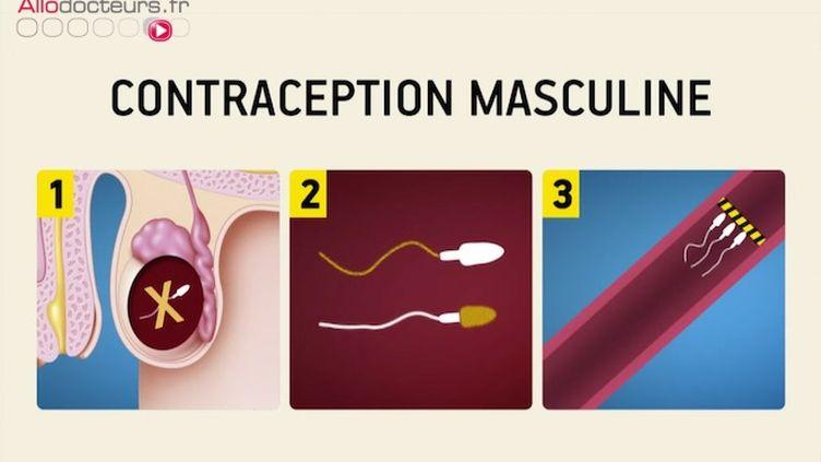 Contraception masculine : où en est-on ?